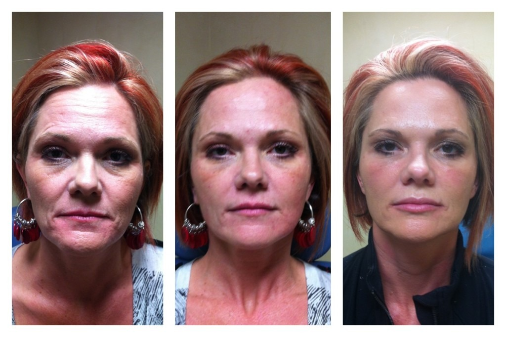 Liquid Facelift 6 Syringes Juvederm® | Beverly Hills | Los Angeles