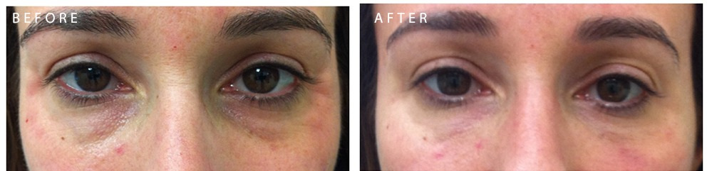 Restylane Under Eyes Before and After 1.1 Restylane® and Perlane® | Beverly Hills | Los Angeles