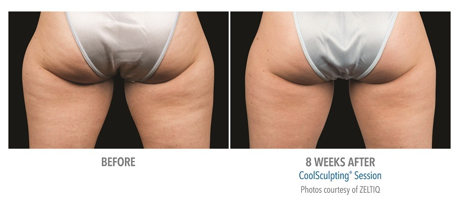Thigh Before & After 8