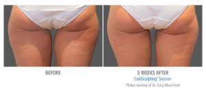 CoolSculpting vs. VelaShape for Body Contouring
