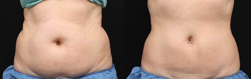 CS Web 3 CoolSculpting  | Beverly Hills | Los Angeles