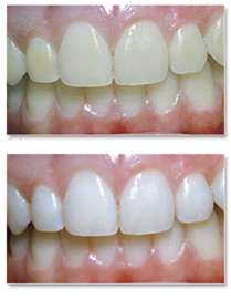 teeth Teeth Whitening | Beverly Hills | Los Angeles