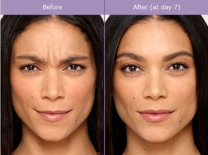 Botulinum Toxin (Botox) Procedure Steps