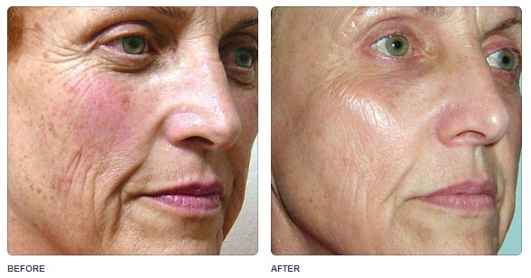 Aesthetic Skin Treatments with Alma HarmonyXL AFT Laser