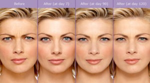 Get Rid of Wrinkles with Botox: Before and After Pictures | Beverly Hills