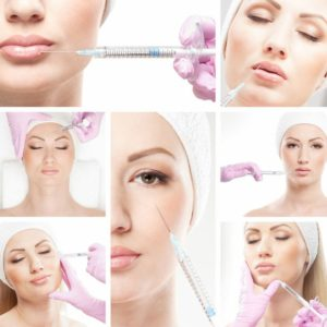 Liquid Facelift with Restylane, Voluma, & Juvederm