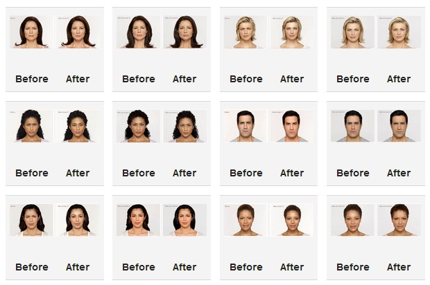 botox before and after photos los angeles beverly hills