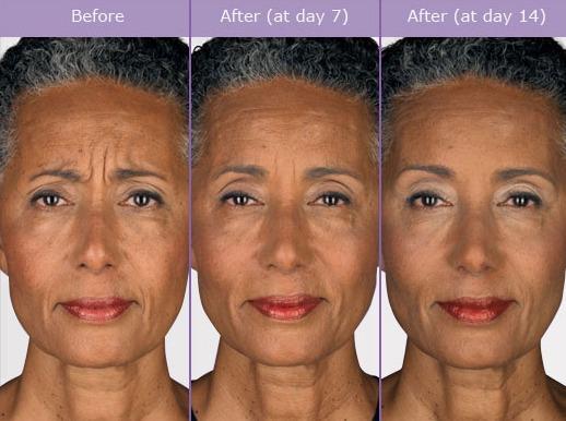 How long does Botox Last?