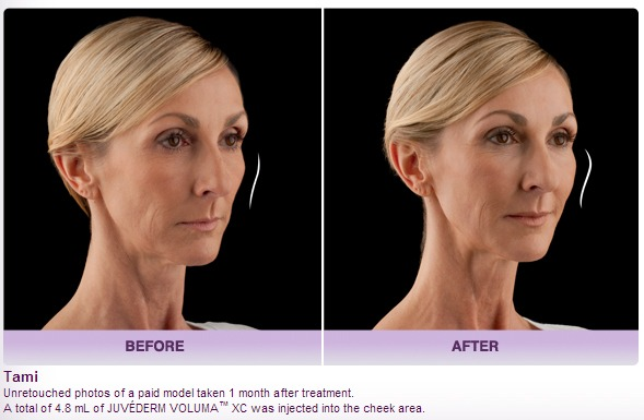 Juvederm Voluma Cheek Volumizer Before and After Photos