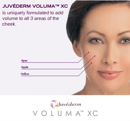 Juvederm Voluma Cheek Volumizer Cost Beverly Hills | Los Angeles Spa