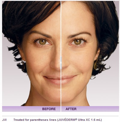 Restylane vs. Juvederm Beverly Hills Med Spa | Los Angeles CA Medical