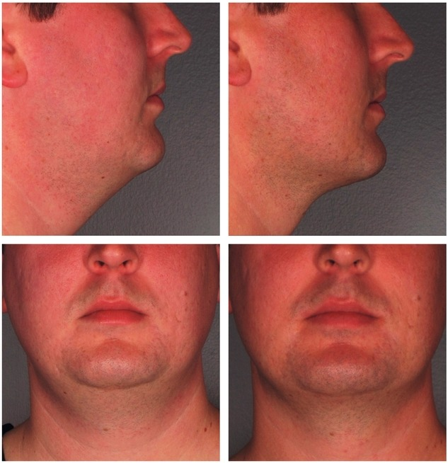 Kybella Double Chin Reduction Before and After Photos
