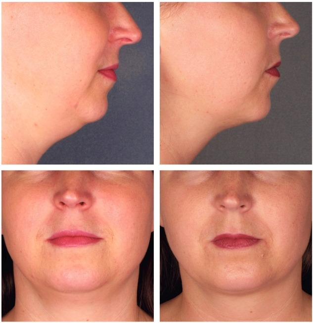 Kybella FDA Approved for Double Chin Reduction