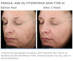 SkinMedica VitalizePeel Before After Photos