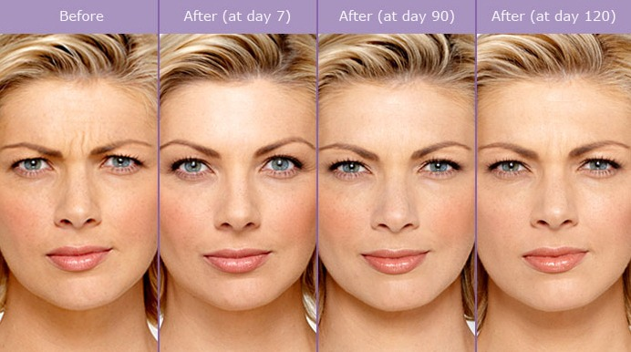 Botox Before & After Photos