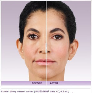 Juvederm as a Cheek Filler