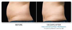 CoolSculpting | Los Angeles | Medical Spa | Non-Surgical Fat Reduction