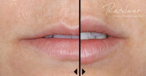 Restylane Lip Enhancement Before and After Photos | Beverly Hills | LA
