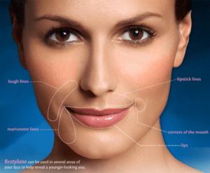 Juvederm vs. Restylane | Dermal Fillers | Anti-Aging | Beverly Hills