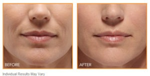 Juvederm vs. Belotero