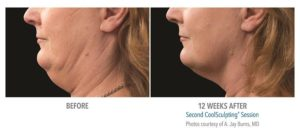 Kybella vs. CoolSculpting Cool Mini | Chin Fat Reduction|Beverly Hills
