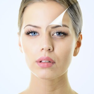 Types of Chemical Peels | Beverly Hills Medical Spa | West Hollywood
