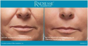 What are dermal filler injections like Radiesse? | Beverly Hills Med Spa
