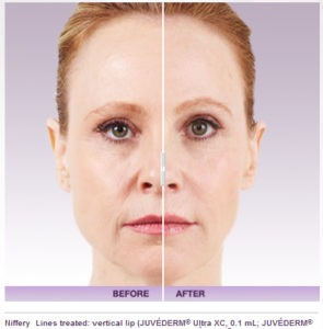 Fat Injections as Dermal Fillers