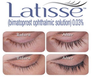 Latisse for Thicker Eyebrow Growth Before and After Photos