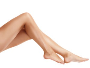 Preparing for Spider Vein Treatment (Sclerotherapy)