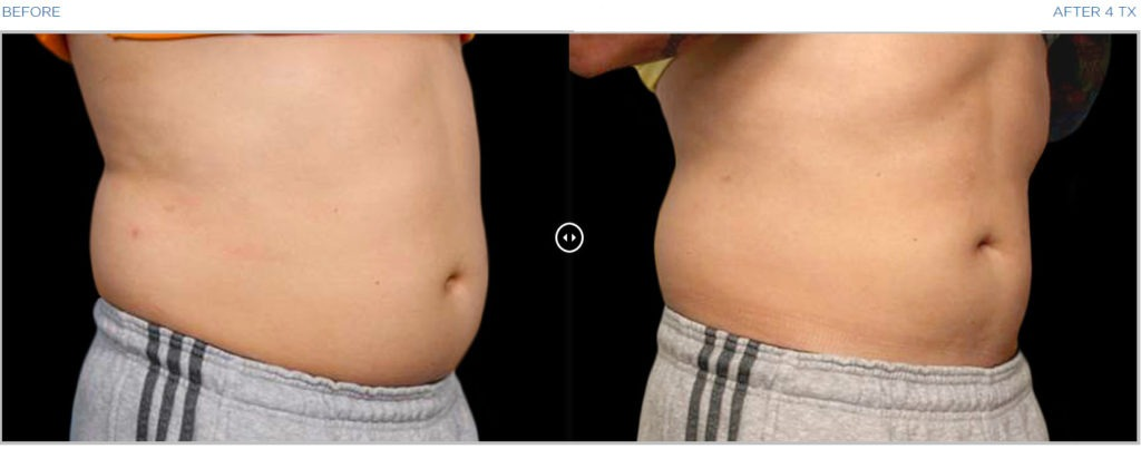 BTL VANQUISH ME Body Contouring Stomach Thighs Before After Photos