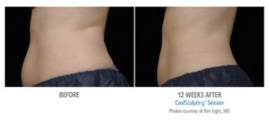 Long-term Effects of Coolsculpting