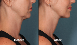 Jowl Fat Removal With Kybella