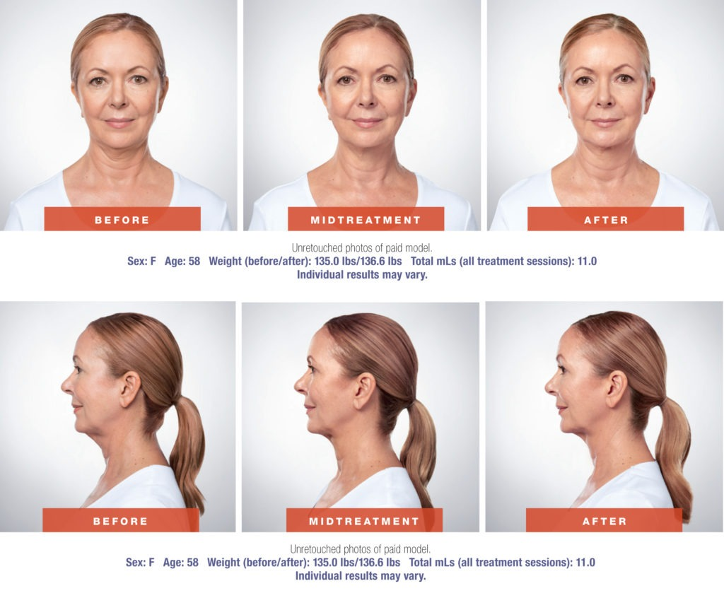 Kybella Before and After pictures 1024x846 - Kybella Injections vs. Chin Liposuction