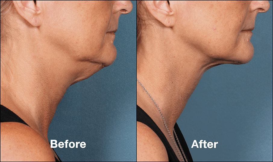 KybellaPatientPRI4BeforeAfterSideView - How to Speed Up Kybella Swelling Recovery
