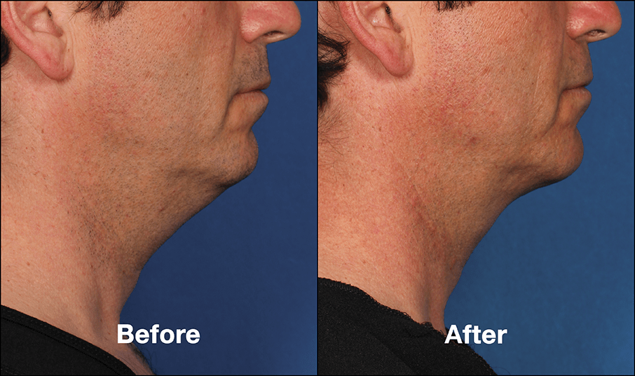 KybellaPatientPRI8BeforeAfterSideView - Kybella Swelling: How Long Does It Last?