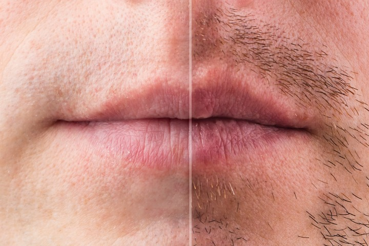 Beard Hair Transplant & Restoration