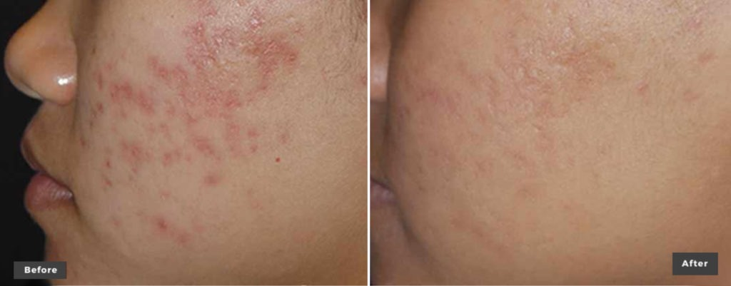 Skin Revitalization Resurfacing Treated with xeoLaser Genesis before after photos 1024x401 - Laser Genesis