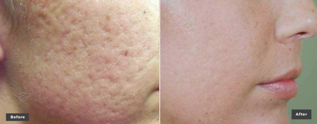 Skin Revitalization Resurfacing Treated with xeoLaser Genesis before after picture 1024x401 - Laser Genesis