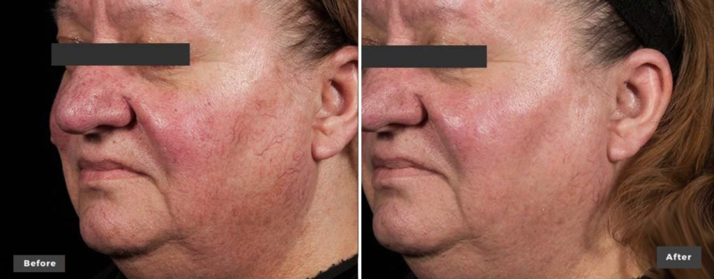Excel V+ Vascular And Pigmentation Laser Treatments