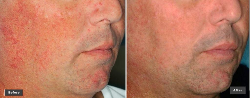 Excel V+ VascularAndPigmentation Laser Treatments