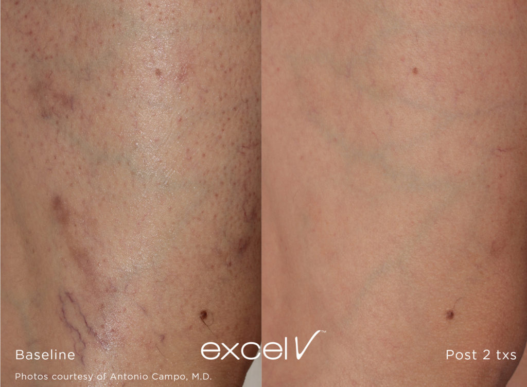 Excel V Vascular Laser Vascular And Pigmentation Laser Treatment Before & After Photos