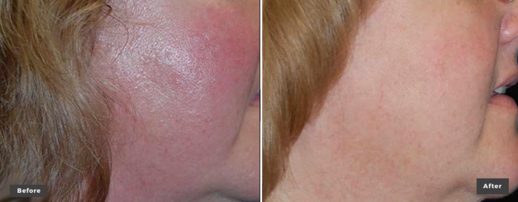 Laser Genesis Skin Tone & Scar Removal Before & After Photos