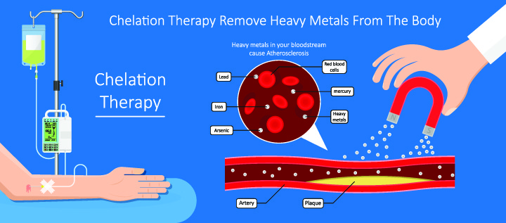 Types of IV Therapy: Chelation Therapy Metal Detox