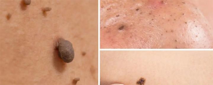 Mole / Skin Tag Removal