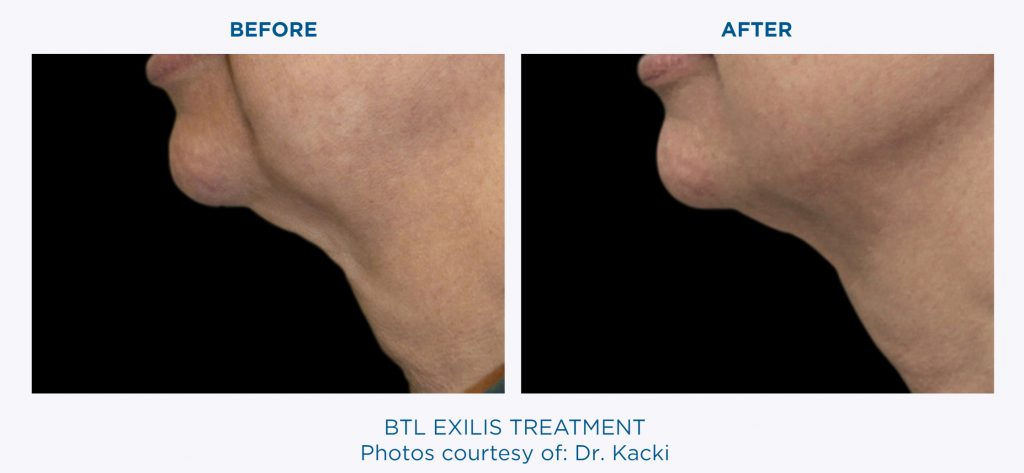 BTL EXILIS Ultra Tight: For The Delicate Skin Around The Eyes, Neck, Face, And Décolletage