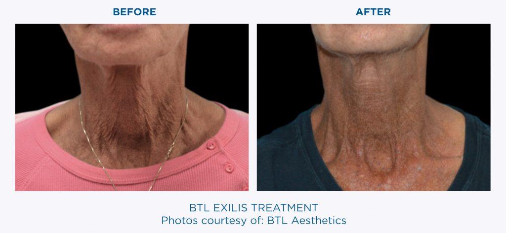 Cellulite Removal With BTL EXILIS Ultra